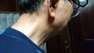 首の後ろのアトピー後ろ