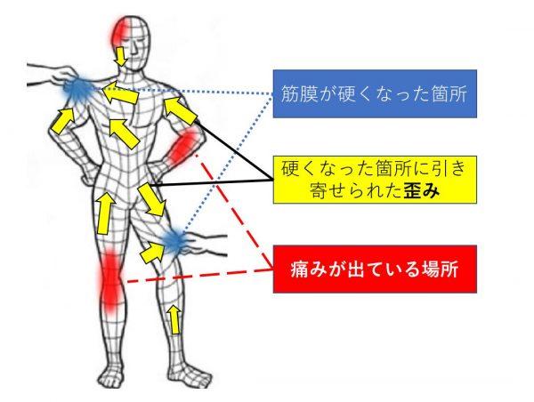筋膜の痛み